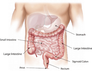 Vitamin D in colon cancer – Any benefit?